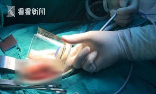 Bác sĩ đau đầu ca bệnh ly nước kẹt trong ... hậu môn - 3