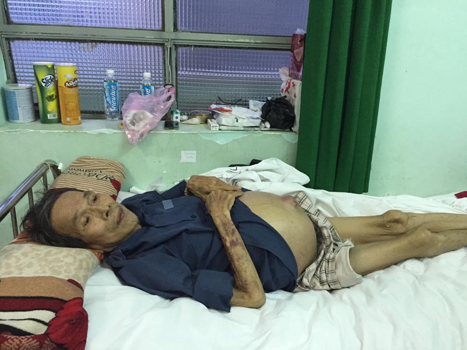 Nghệ sĩ nghèo: Người bệnh không tiền đóng viện phí, kẻ sống tạm bợ qua ngày - 2
