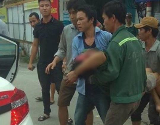 Hà Nội: Người đàn ông bị thương sau tiếng nổ lớn ở Xã Đàn - 1