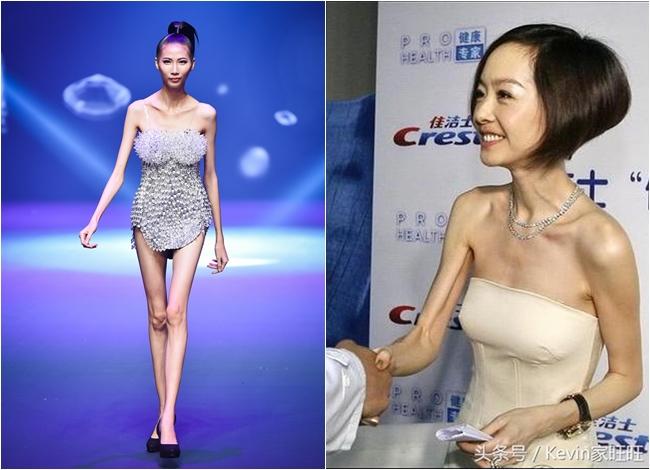"""Người mẫu Cao Ngân khiến nhiều người hoảng hốt khi trình diễn trên sàn catwalk """"Vietnam Next Top Model 2017"""" với thân hình siêu gầy. Được biết, cô nàng cao 1m78 nhưng chỉ nặng có... 40kg. So với Cao Ngân, nhiều ngôi sao Cbiz cũng từng trở thành đề tài thu hút sự chú ý vì quá gầy. MC Lỗ Dự là một trong số đó với thân hình mỏng như giấy. Thậm chí, cô còn đứng đầu danh sách những ngôi sao gầy nhất Cbiz."""
