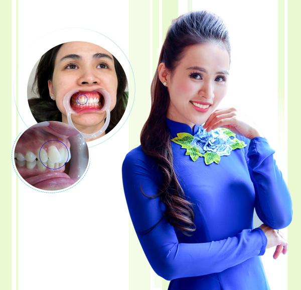 Trào lưu răng khểnh và quan niệm Đông – Tây - 3