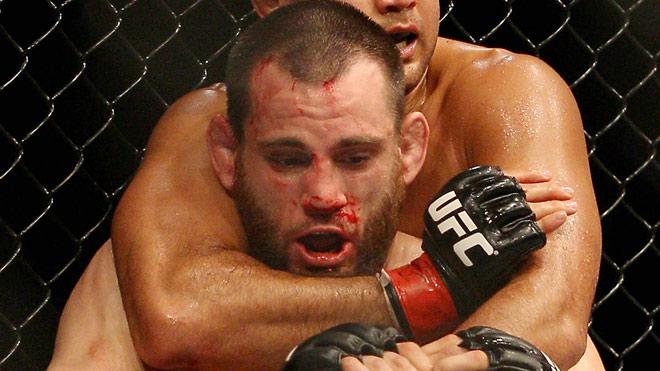 Những scandal chấn động UFC: Nặng hơn 27kg, dính doping lên sàn hại đối thủ - 3