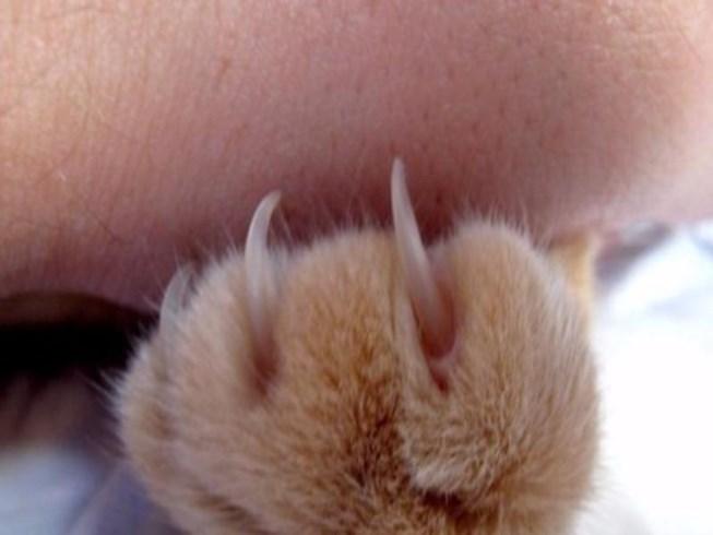 Thanh niên mắc chứng bất lực sau khi bị mèo cào - 1