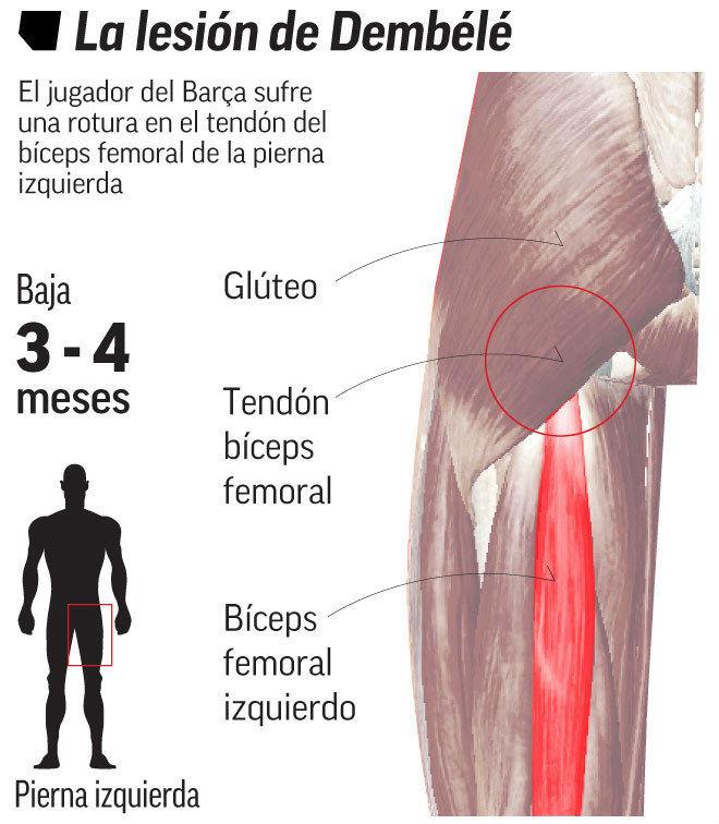 Barca mất Dembele 4 tháng: Tiết kiệm 10 triệu euro, Messi làm quân sư - 2