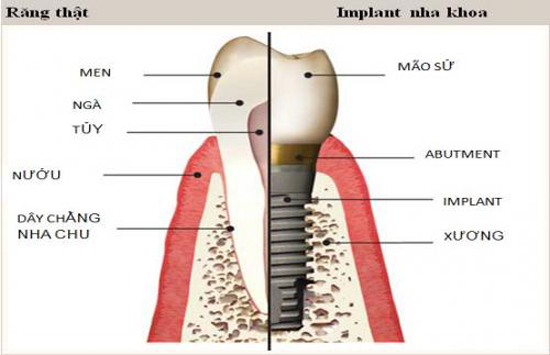 Miễn phí cấy ghép xương và tặng răng sứ khi trồng răng Implant - 1