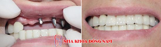 Miễn phí cấy ghép xương và tặng răng sứ khi trồng răng Implant - 4