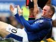 Everton - Bournemouth: Rooney đổ máu, người hùng dự bị