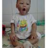 Bộ Tư pháp giúp đỡ bé gái 9 tháng tuổi