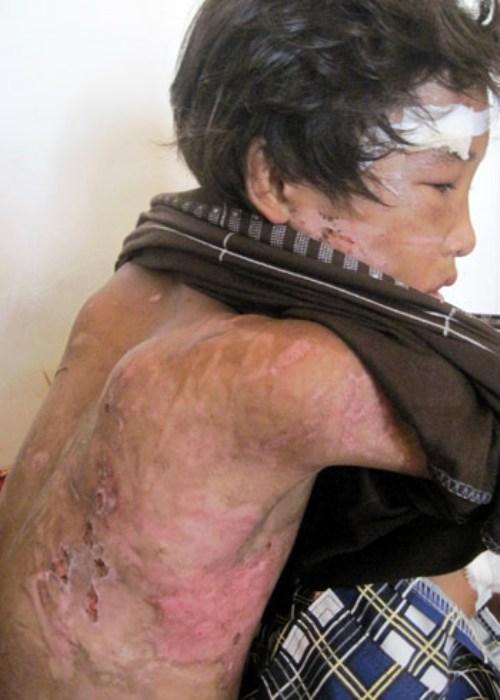 5 vụ hành hạ trẻ em kinh hoàng nhất 2010 - 2