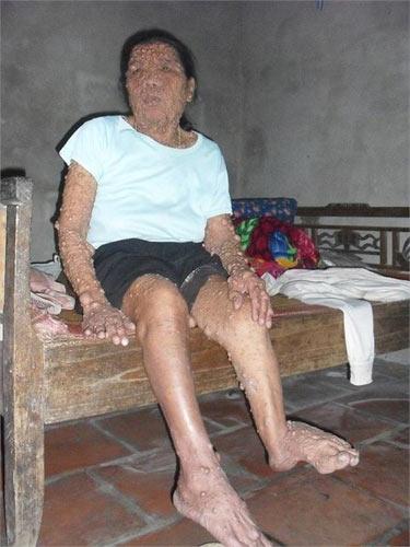 """Người đàn bà mang """"thân hình quỷ"""" ở Hà Nam - 1"""