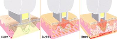 3 bước chữa viêm chân lông hiệu quả - 3
