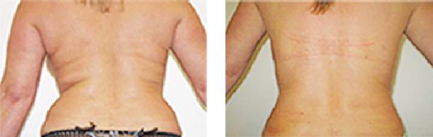 Phương pháp hút mỡ không phẫu thuật bằng laser - 3