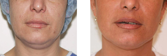 Phương pháp hút mỡ không phẫu thuật bằng laser - 4