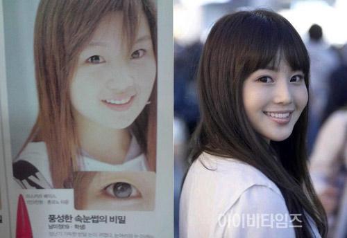 Thành viên Suju thừa nhận phẫu thuật thẩm mỹ - 6