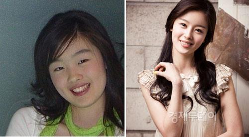 Thành viên Suju thừa nhận phẫu thuật thẩm mỹ - 8