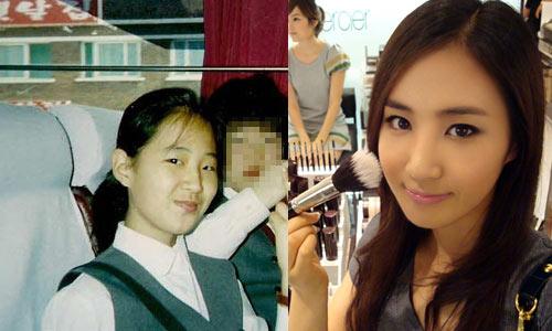 Thành viên Suju thừa nhận phẫu thuật thẩm mỹ - 9