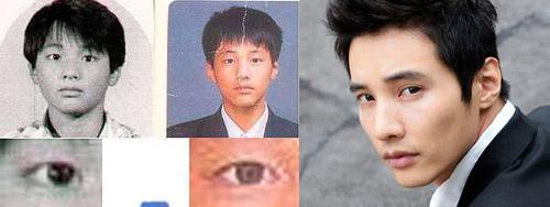 Thành viên Suju thừa nhận phẫu thuật thẩm mỹ - 10