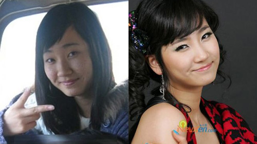 Thành viên Suju thừa nhận phẫu thuật thẩm mỹ - 7