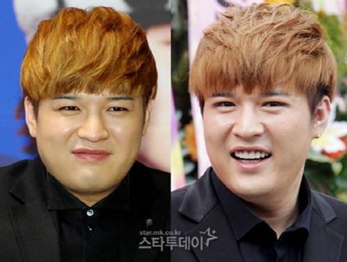 Thành viên Suju thừa nhận phẫu thuật thẩm mỹ - 4