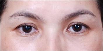 Điều trị da khô nứt nẻ mùa đông - 4