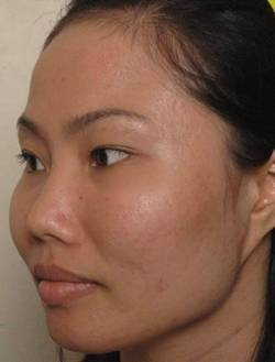 Điều trị da khô nứt nẻ mùa đông - 5