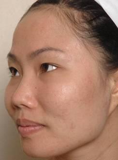Điều trị da khô nứt nẻ mùa đông - 6