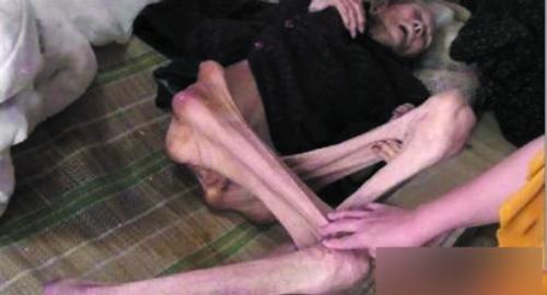 TQ: Phẫn nộ cụ bà 6 con bị bỏ đói đến chết - 1