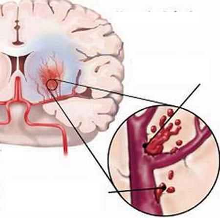 Có thể phòng tránh đột quỵ não? - 1