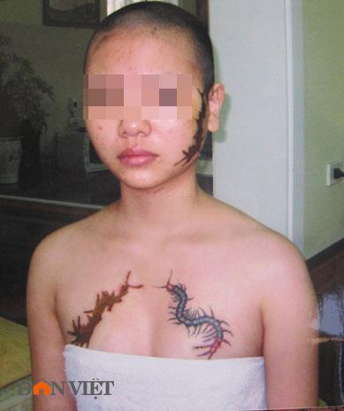 Hình ảnh mới về cô gái bị ép xăm quái vật - 1