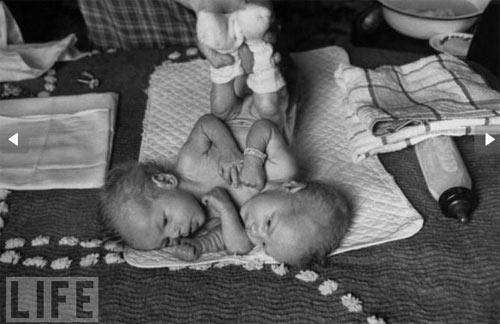 Những cặp sinh đôi dính liền kì lạ nhất - 12