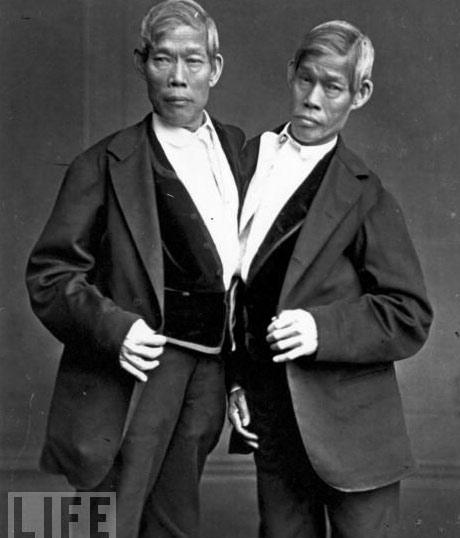 Những cặp sinh đôi dính liền kì lạ nhất - 1