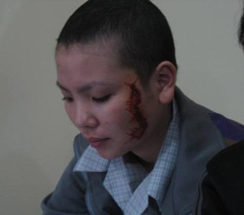 Cô gái bị xăm rết lên mặt sẽ học nghề - 2