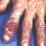 Sức khỏe đời sống - Tìm hiểu về bệnh giang mai