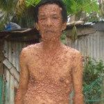 Tin tức trong ngày - Thêm một người mang hàng ngàn khối u