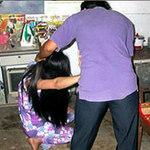 An ninh Xã hội - Yếu sinh lý, chồng đánh gãy mũi vợ