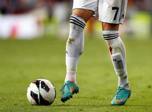 Kinh hãi Ronaldo rách chân, đổ máu - 5