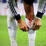 Bóng đá - Kinh hãi Ronaldo rách chân, đổ máu