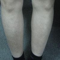 Điều trị bệnh chàm - Eczema