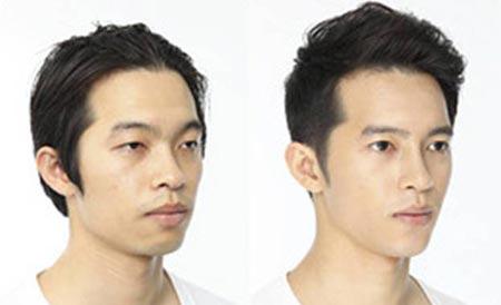 Đàn ông Hàn đua nhau phẫu thuật thẩm mỹ - 2