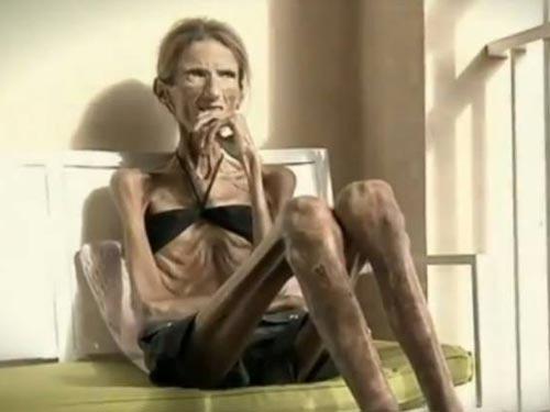 Chế độ ăn kiêng khắc khổ đã khiến cô bị mất tới
