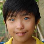 Sức khỏe đời sống - Đà Lạt: Cậu bé mắt xanh biếc là do di truyền?