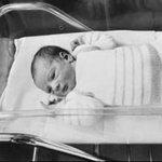 Sức khỏe đời sống - Trẻ thụ tinh dễ bị khuyết tật