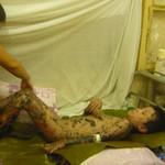 Sức khỏe đời sống - Dị ứng thuốc, bé trai bị tróc da toàn thân