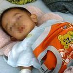 Tin tức trong ngày - BS cắt nhầm bàng quang cháu bé 21 tháng