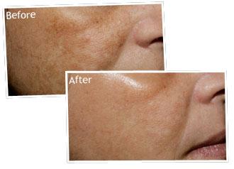Cách trị nám da và đốm nâu sau sinh - 1