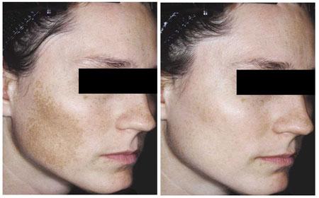 Cách trị nám da và đốm nâu sau sinh - 2