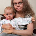 Sức khỏe đời sống - Bệnh lạ: Hai mẹ con bị lột da, bóng nước