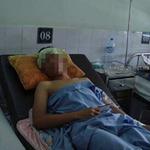 Sức khỏe đời sống - BN bị chuột cắn: Tiêm ngừa uốn ván rồi vẫn bị sốt?