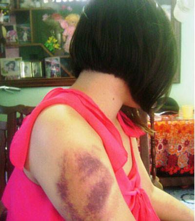 Nữ sinh viên tố bị cha hành hung dã man - 1