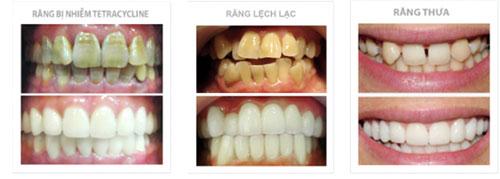 Thay răng xấu văn bằng răng sứ đẹp tự nhiên